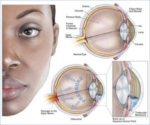What is glaucoma? What causes glaucoma?
