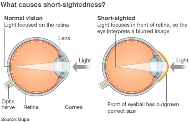 Short-Sightedness and Long-Sightedness