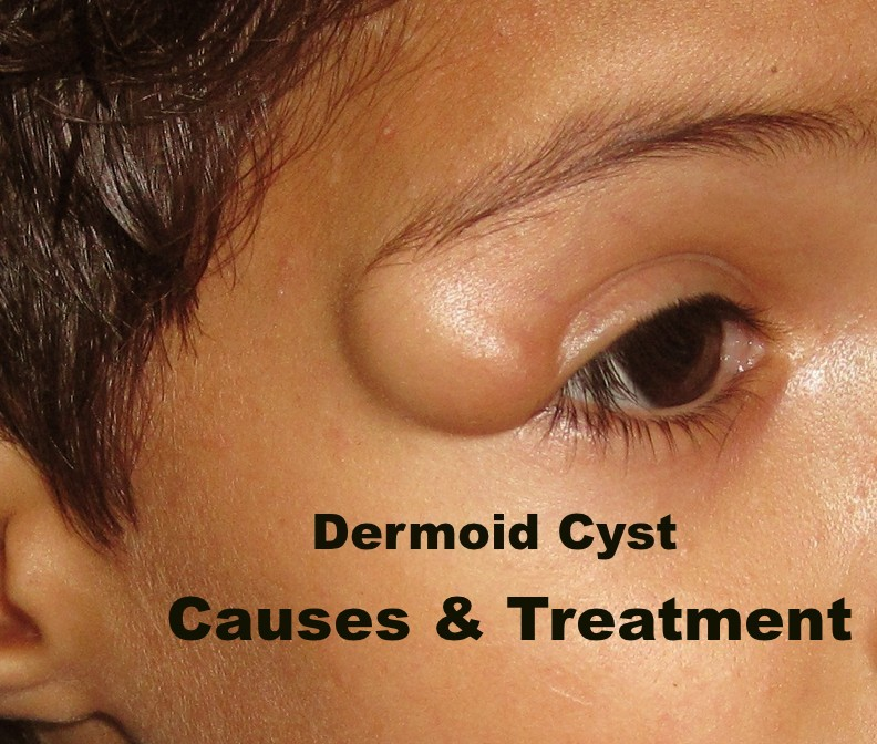Dermoid Cyst: Causes, Symptoms and Treatment